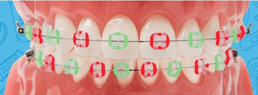 Watermelon colored braces