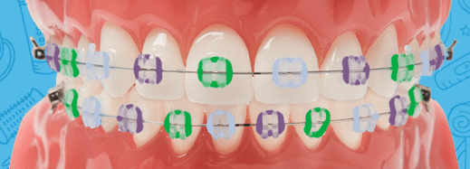 Purple, Green, and Light Blue colored braces