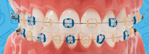 MSU Bobcats colored braces