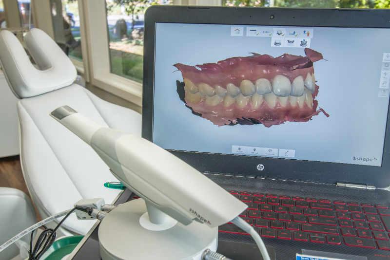digital orthodontic scanner