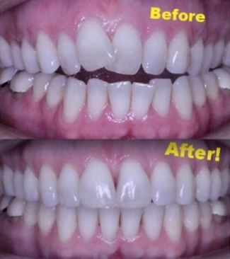 Before and after photo showing open bite malocclusion treated by Invisalign orthodontics in Bozeman, MT