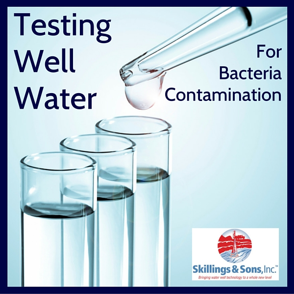 Testing Well Water For Bacteria Contamination