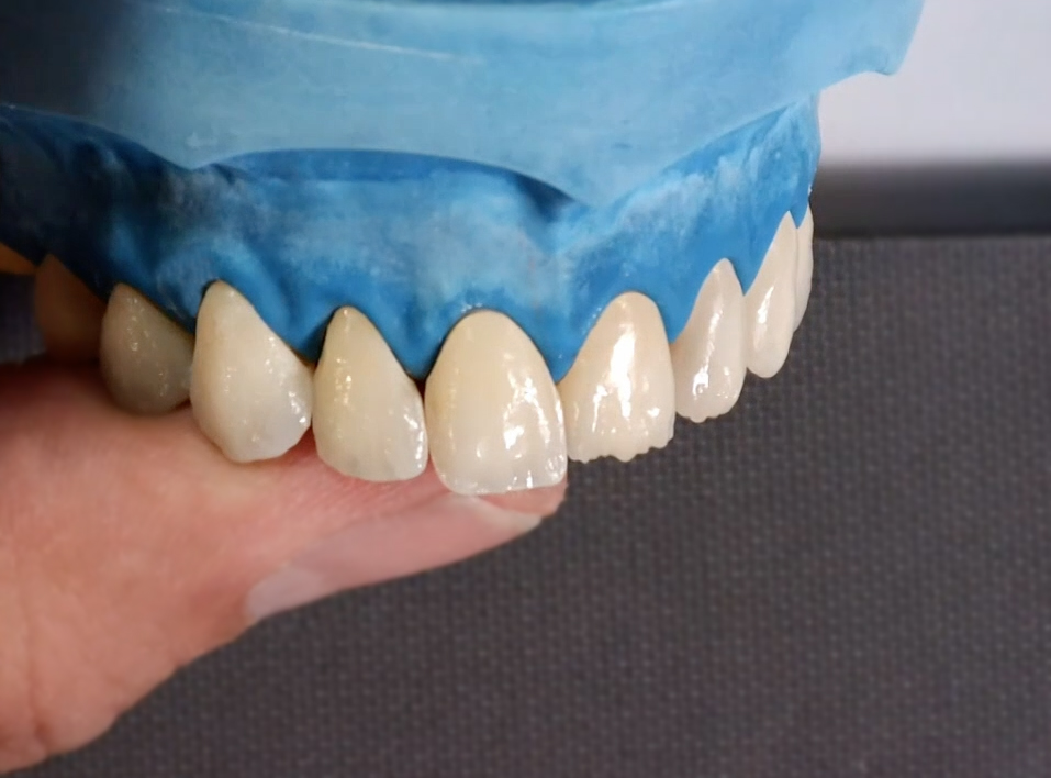 2nd Bake Intermediate Layering Lateral (4 porcelains)