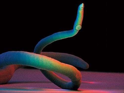 flatworm blood fluke.jpg
