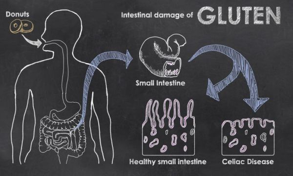 A visual of how grains and gluten destroy the villi in the stomach. The villi are the little tentacle like structures that help absorb and digest nutrients. Grains damage these villi and destroy your ability to absorb food properly. Photo credit:  http://solvingtheibspuzzle.com/