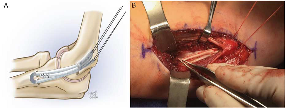 Illustration A and intra-operative photo B demonstrating the reconstructed MUCL ligament.