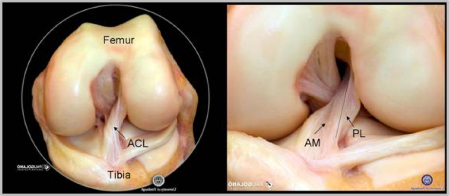 The ACL stabilizes the knee joint. It is made of two bundles. The Anteromedial and Posterolateral bundles.