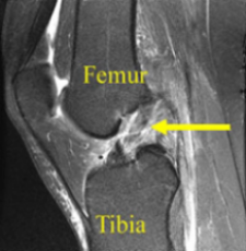 MRI scan demonstrating ACL tear