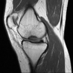 MRI showing osteochondritis dessicans lesion