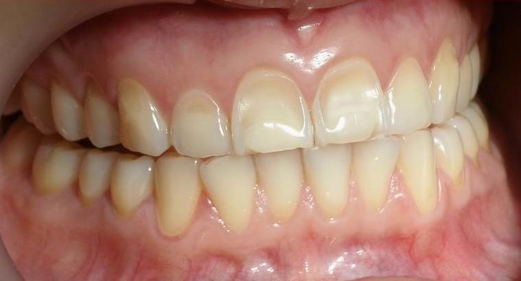 erosion-dental.jpg