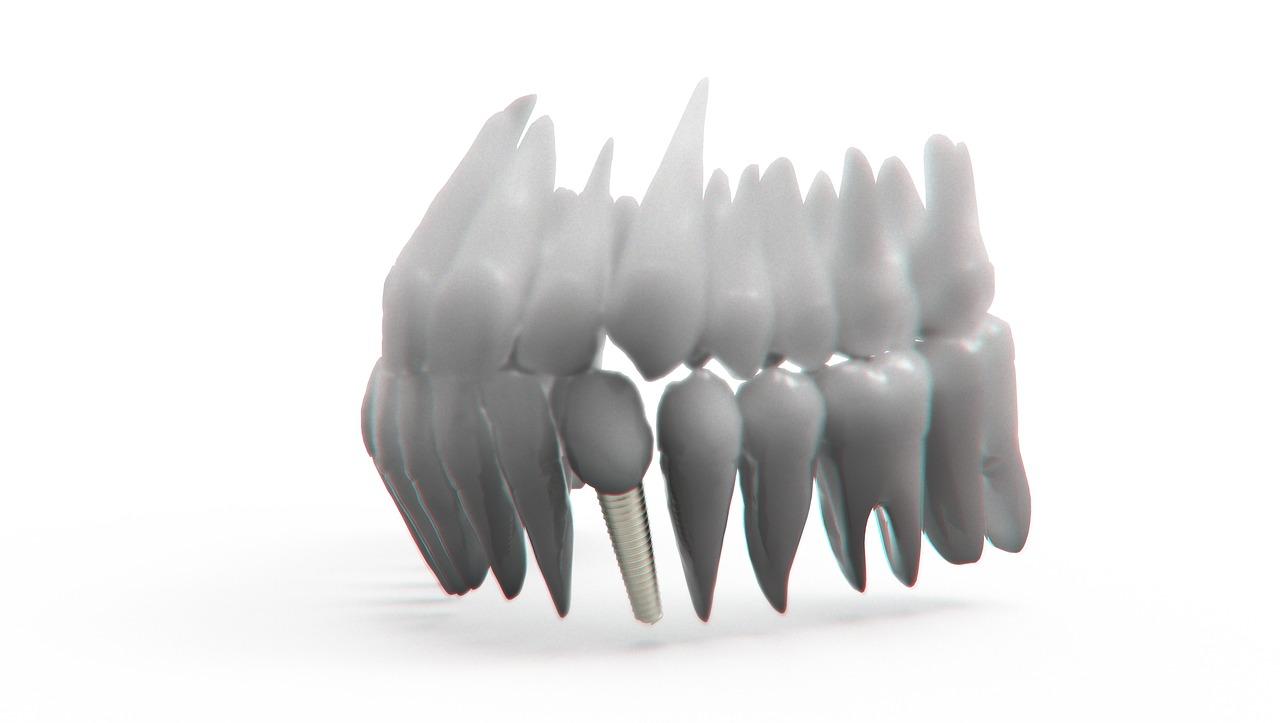 teeth-2833416_1280.jpg