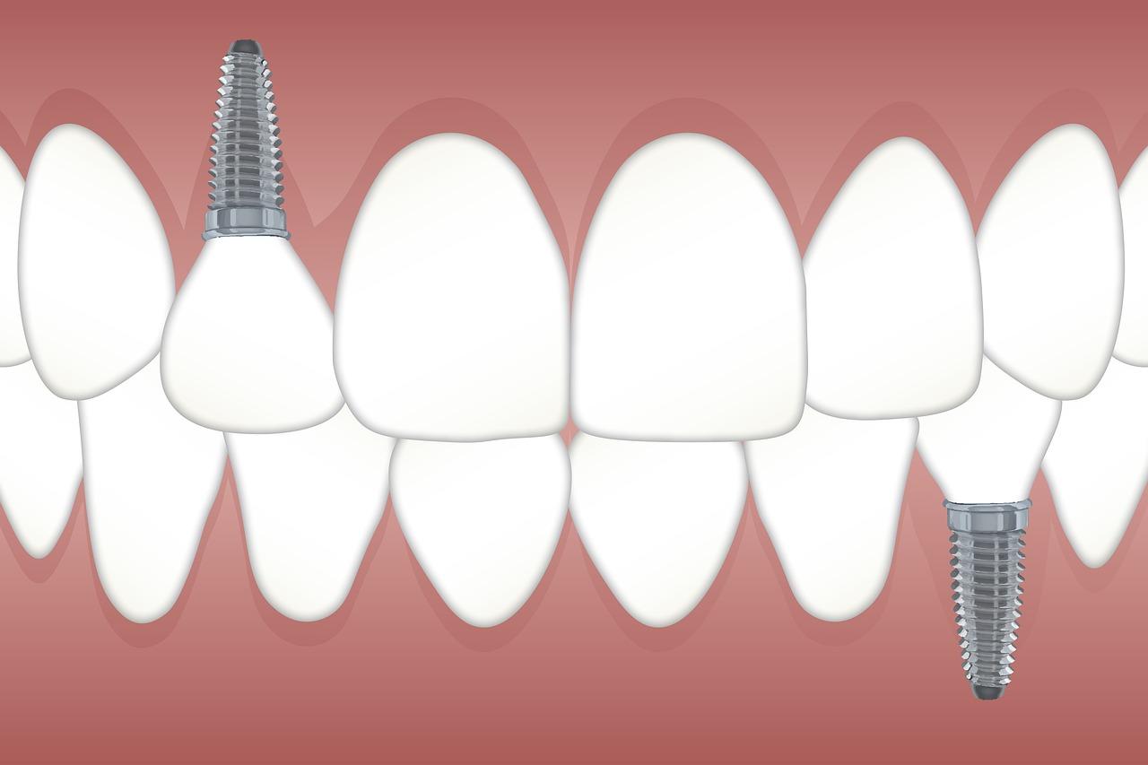 teeth-3597679_1280.jpg