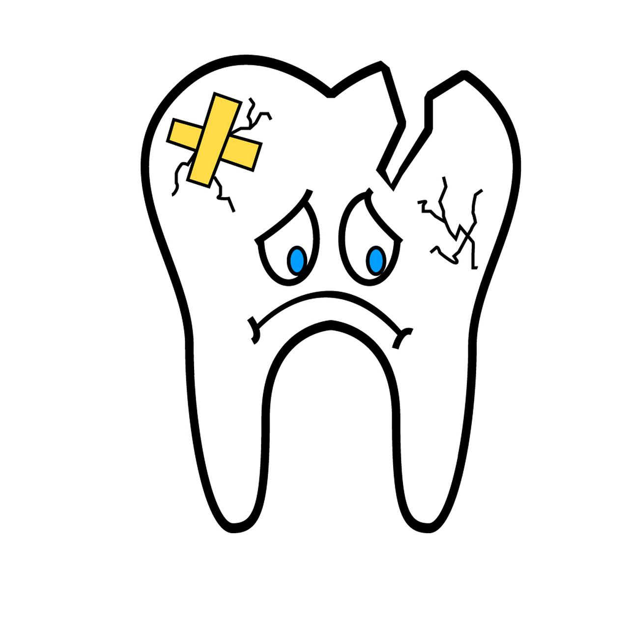 broken-tooth-2351797_1280.png