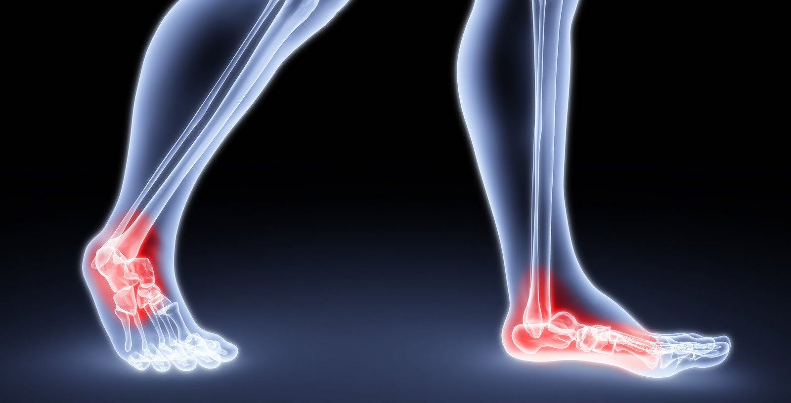 Could That Pain In Your Foot Be Arthritis Foot And Ankle Specialists