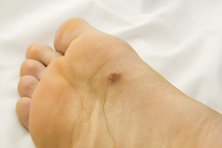 Cell papilloma of skin, Case Report - Hpv skin pathology