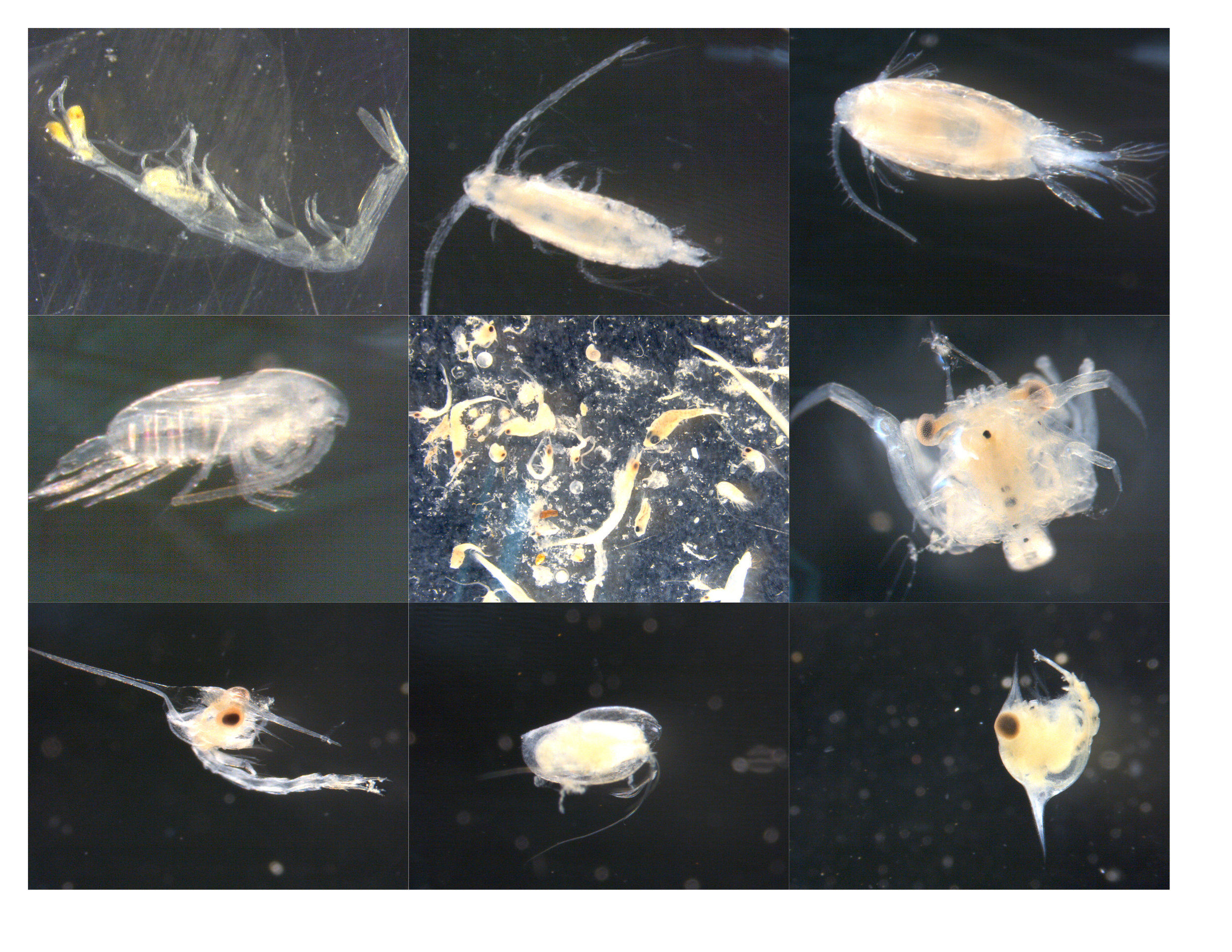 This image is a sampling of the zooplankton found in Brewers Bay, St. Thomas.