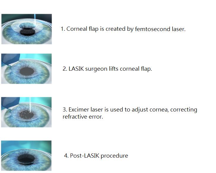 Step-by-step LASIK procedure