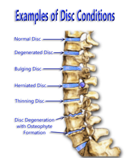 Examples of Disc Conditions
