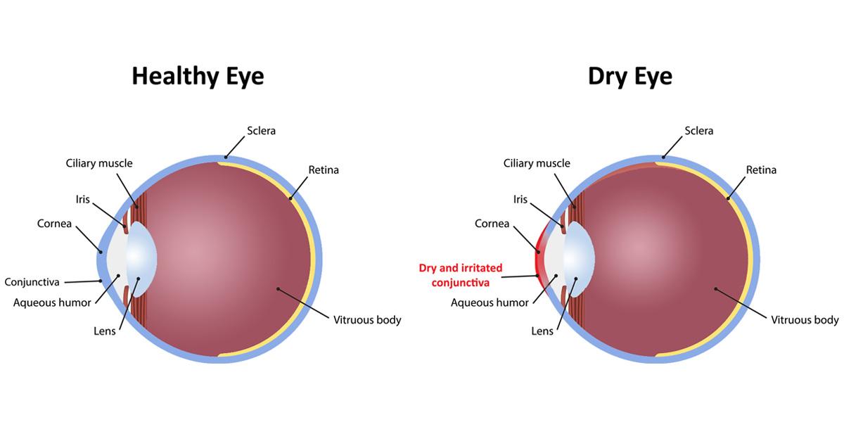 Understanding-Dry-Eye-Syndrome.jpg