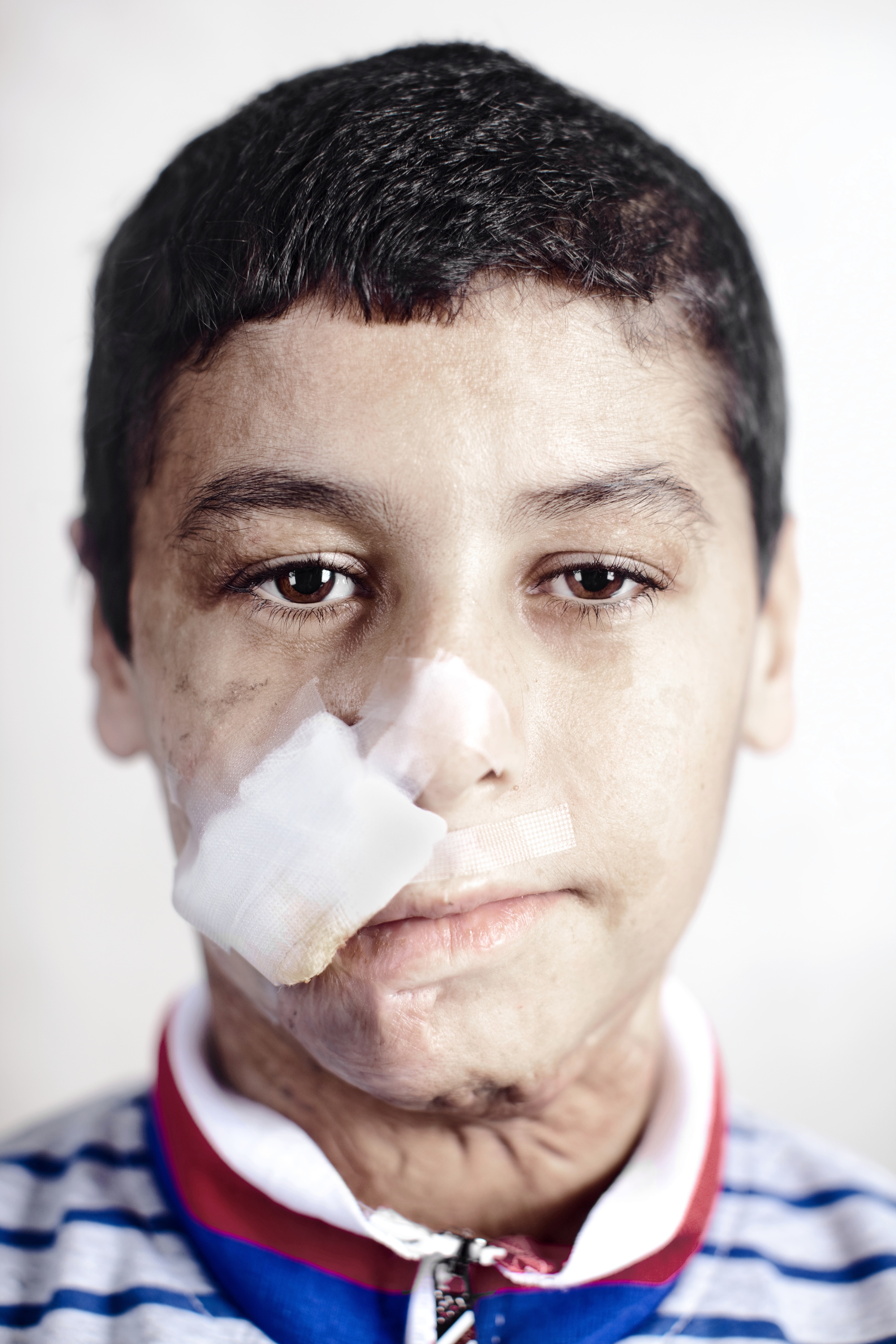 Ahmad Khalifa Mohammed is 13 years old. He is from Diyala and has been in Amman for six months. A car full of explosives rammed into his home. His family was uninjured. He was the sole victim.