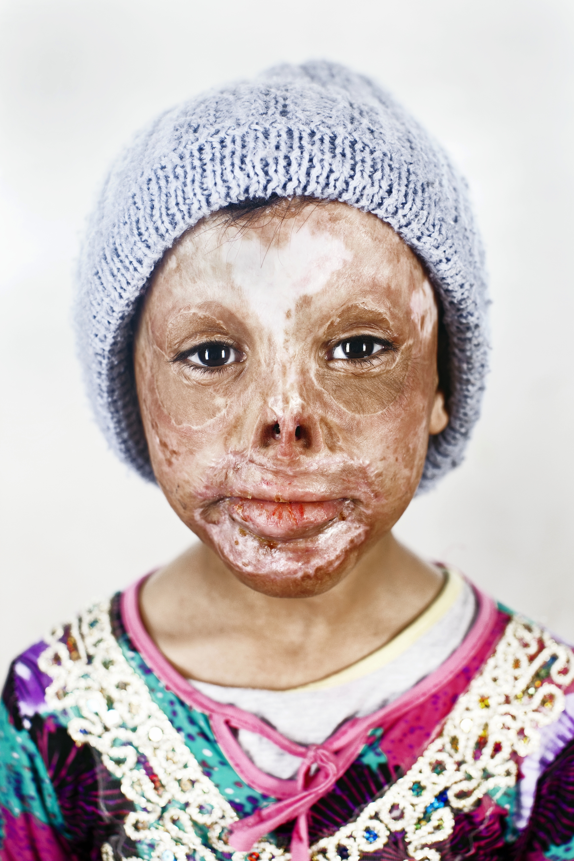 Saja Kheir Allah is six years old. She was sleeping in her home when an explosion set it on fire. She has spent two years in Amman with her father. Saja's mother, two brothers and two sisters are back in Iraq. She does not know when she will go back to see them.