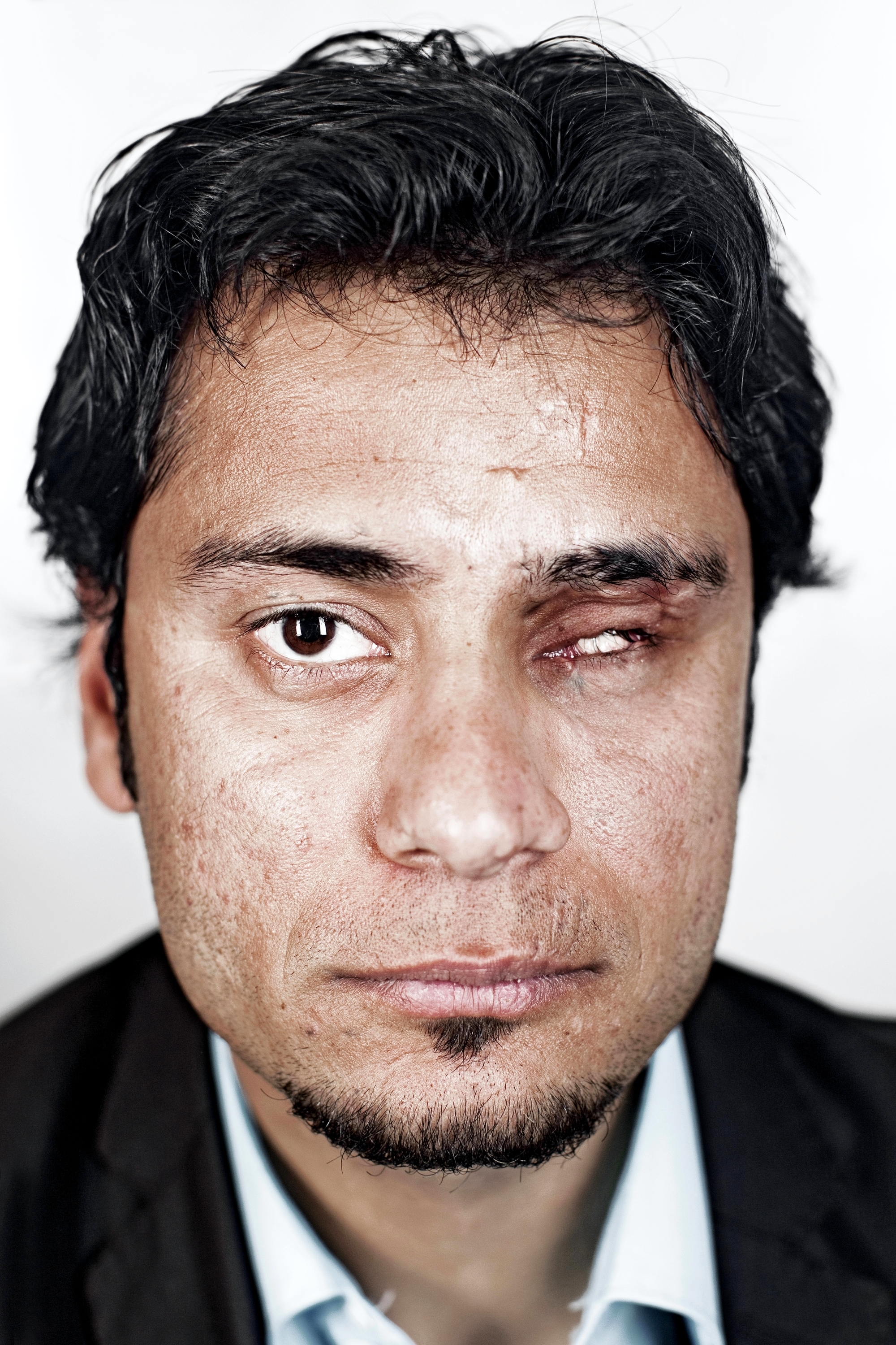 Riyadh Mahdi is 25 years old. He is originally from Fallujah. He was a policeman, working at a checkpoint when he was injured. His flashlight had been duplicated and militants hid a bomb inside the double. When he turned on the light it exploded in his left hand. His hand and forearm were blown off and he was blinded in his left eye.
