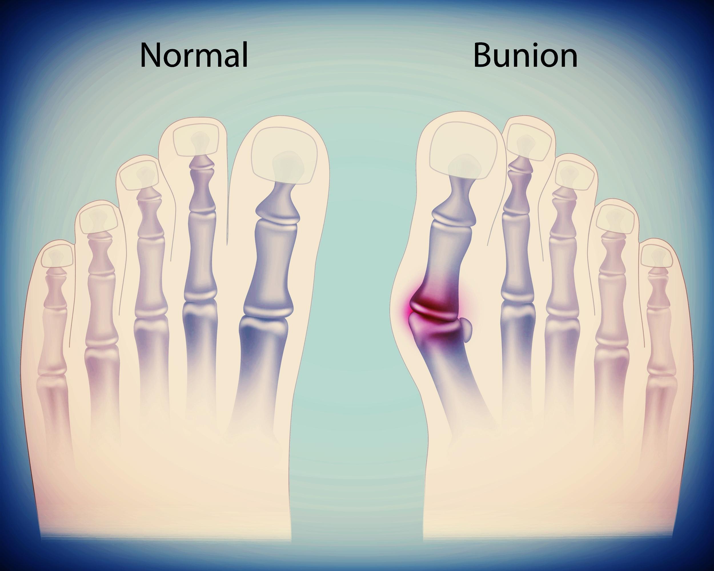 bunion pain relief and correction - bunion specialist podiatrist ross cohen serving glen burnie, md