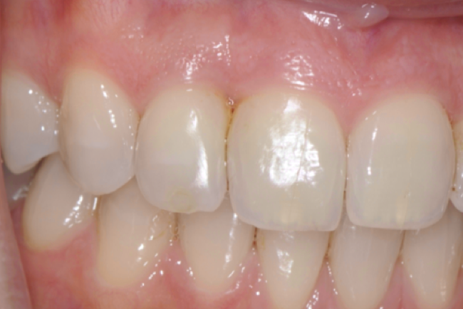 Post–op 12 months later – dentist placed restoration mesial 12