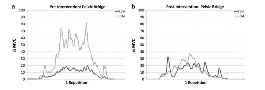 After hip joint injection we see a decrease in Glute Max activity during a hip bridge (Freeman et al 2013)