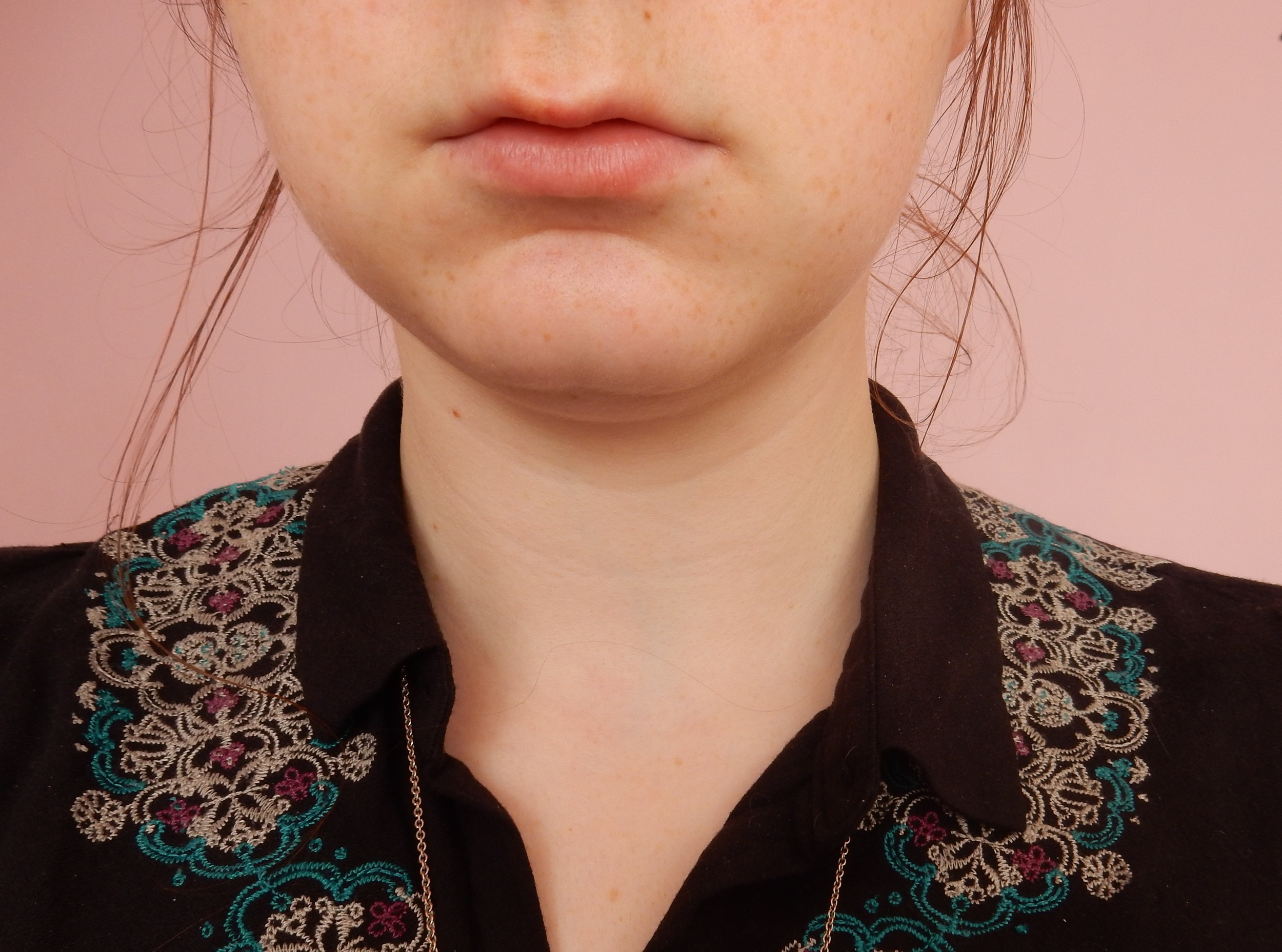 ioma lip lift review before