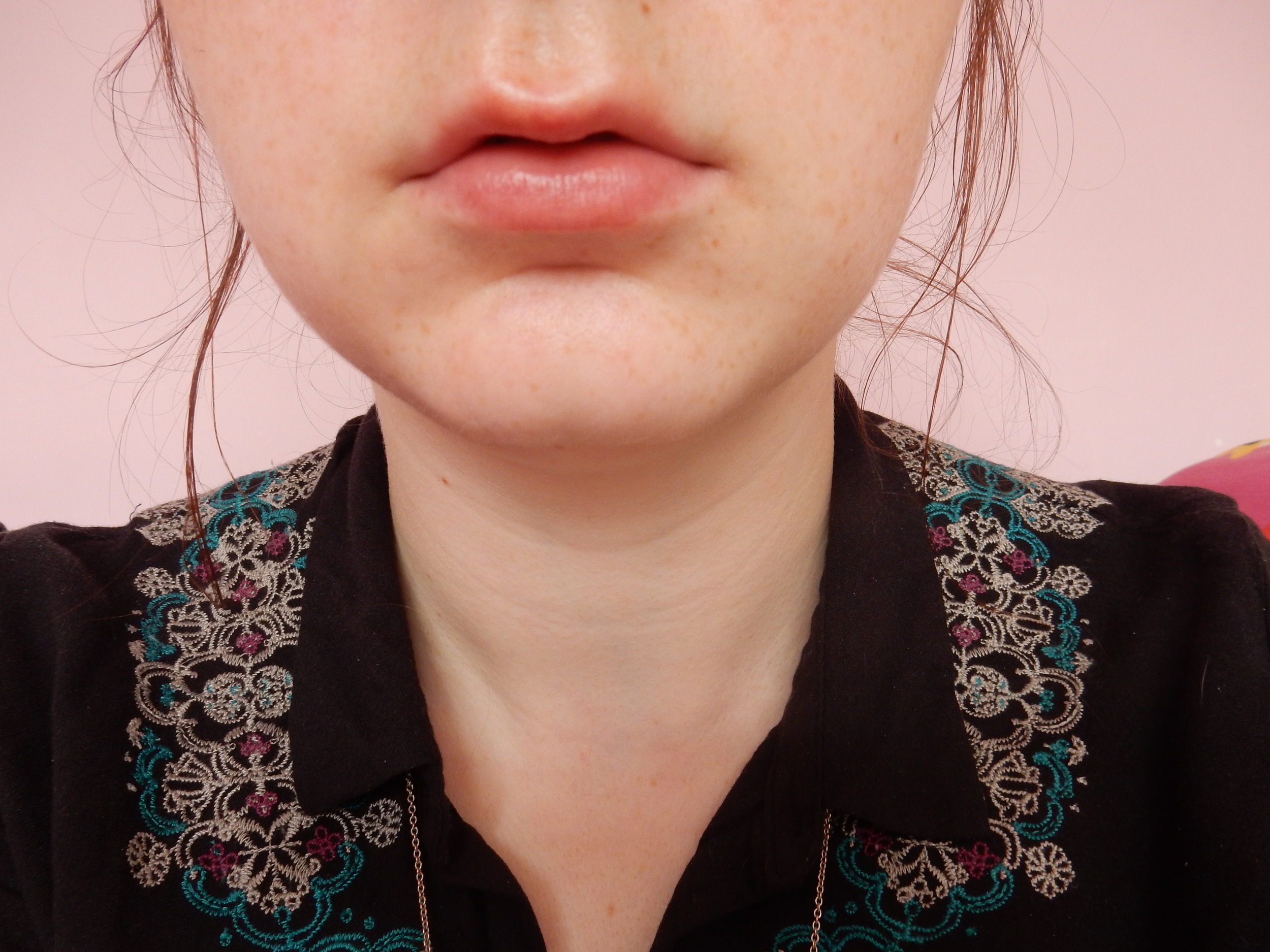 ioma lip lift review after