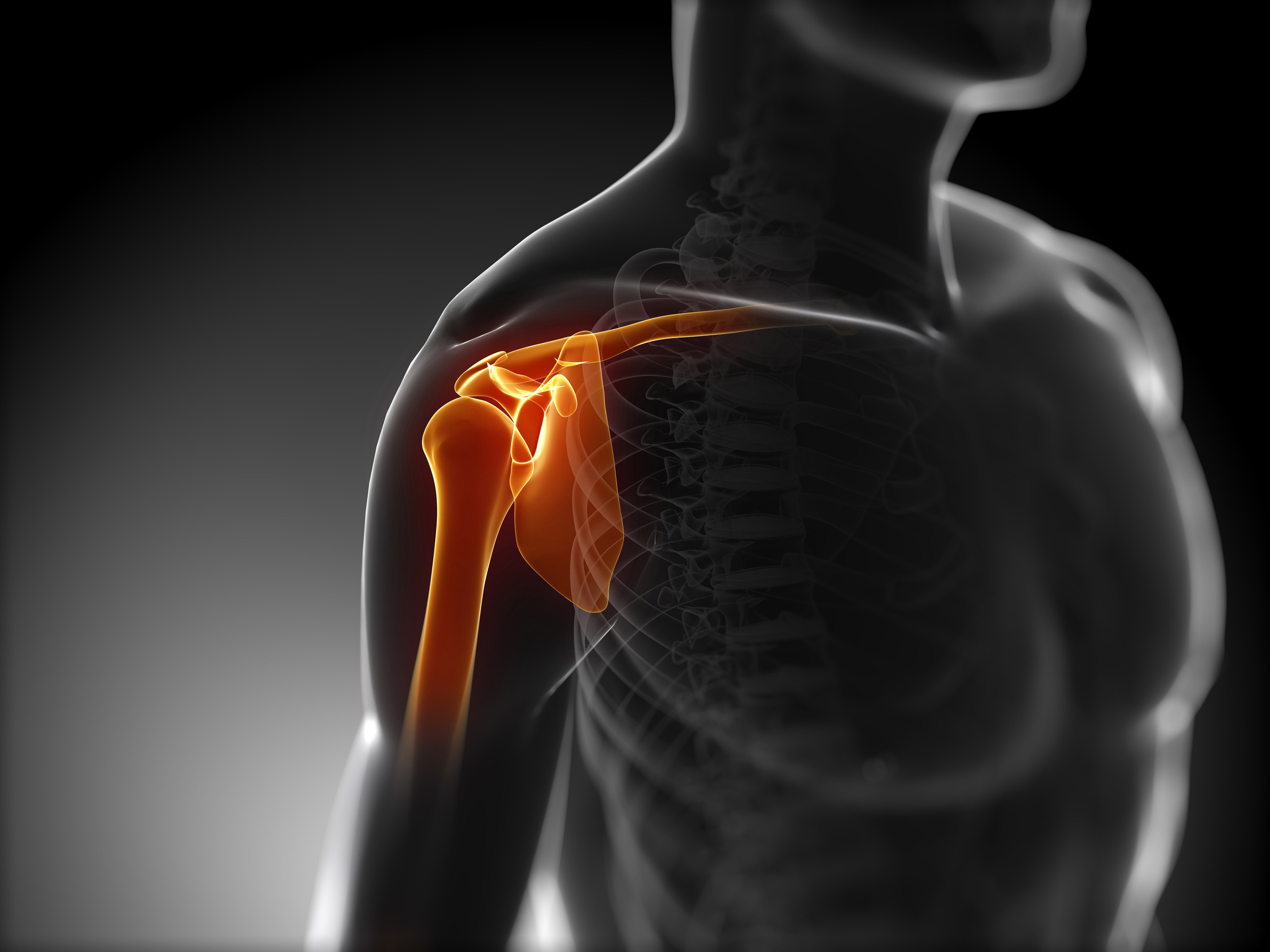Most gym goers focus on beach muscles (pecs and biceps) not appreciating that shoulder is a complex joint. Also the focus in on just lifting the weight rather than focusing on functional movements, the way life is. (Pic Source:http://flowmotionpilates.com)