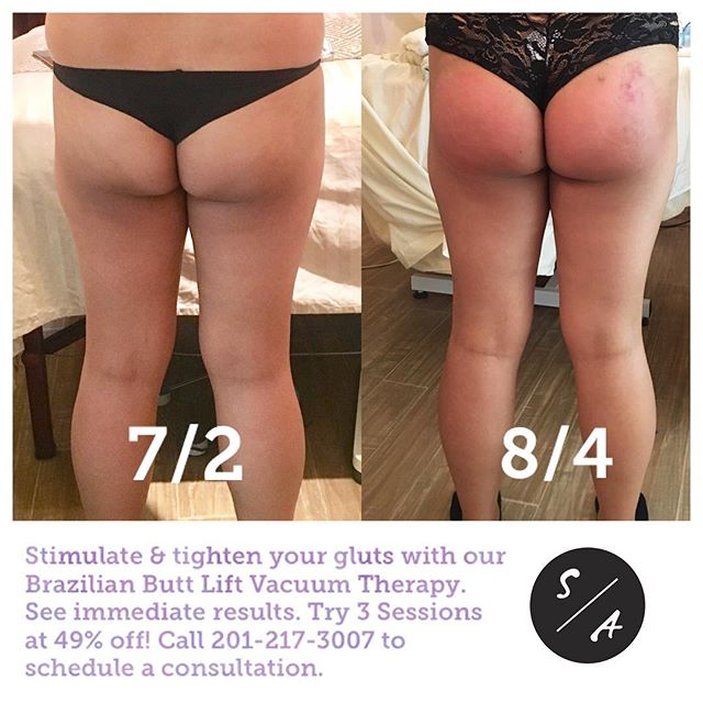 Stimulate & tighten your gluts with our Brazilian Butt Lift Vacuum Therapy. See immediate results. To learn more about this service visit our website.  Special offer for first time clients. Try 3 sessions at 49% off!  Call 201-217-3007 to schedule a consultation with Patricia.