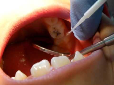 Example image of Silver Diamine Fluoride treatment at Rancho Santa Fe Cosmetic and Family Dentistry