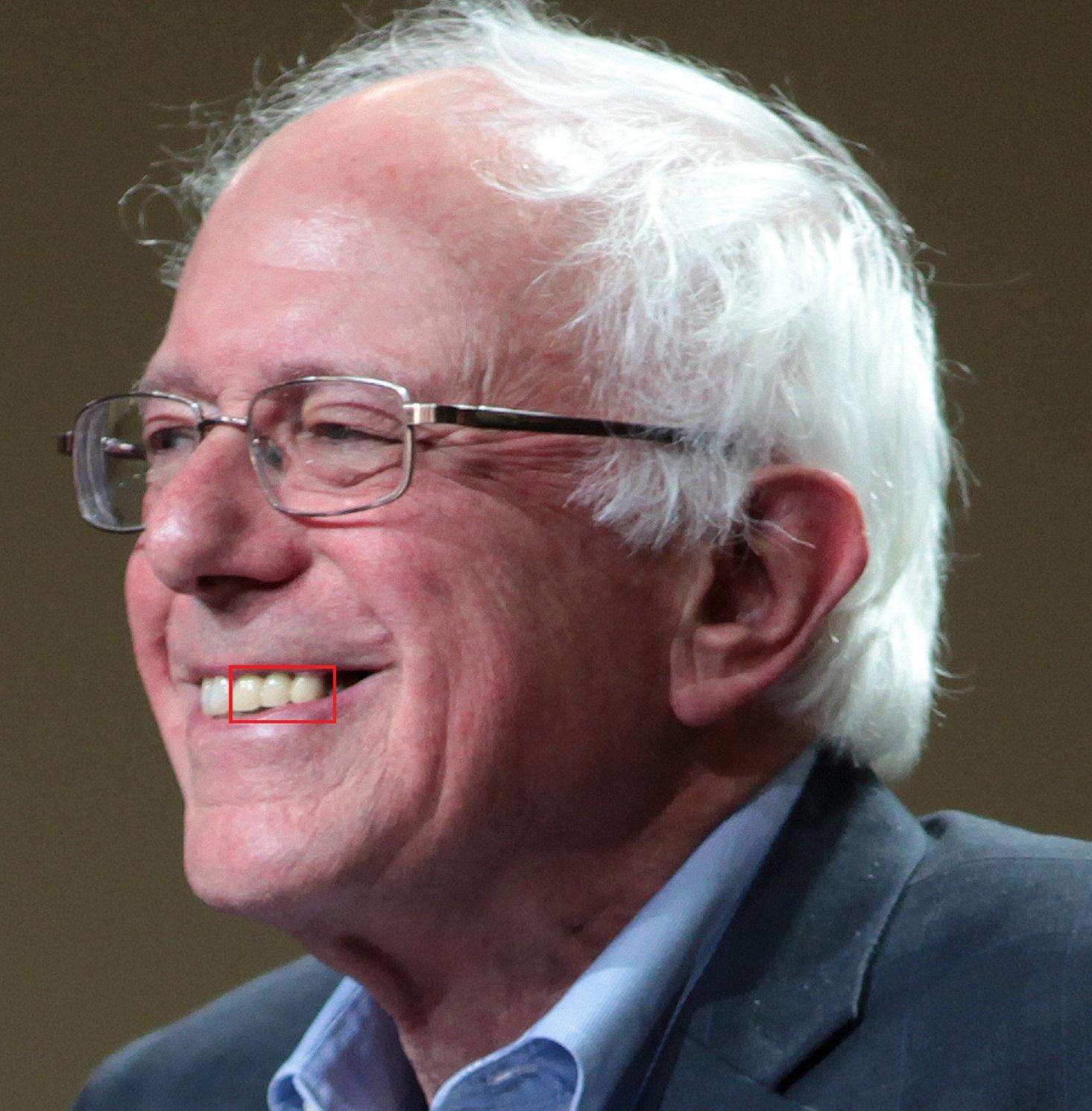 Image of Bernie Sanders highlighting dental work