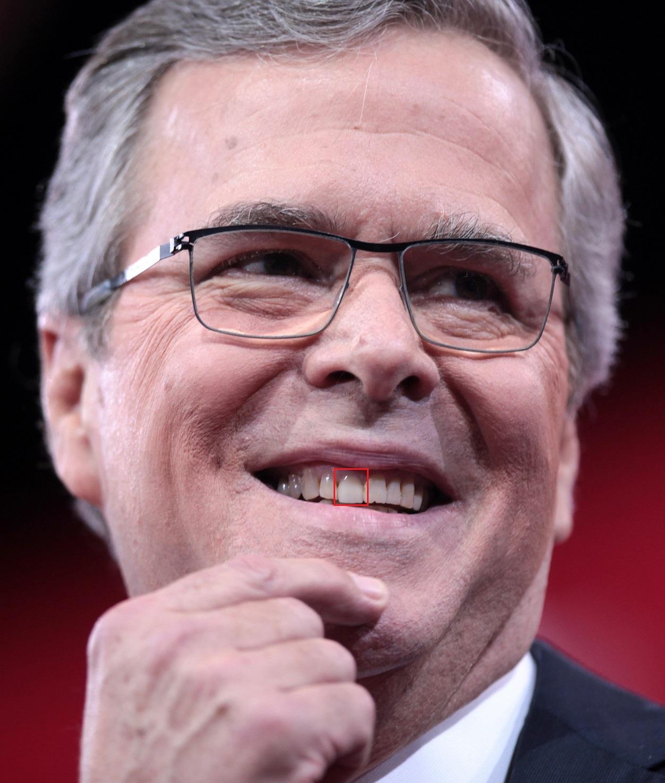 Image of Jeb Bush highlighting dental work