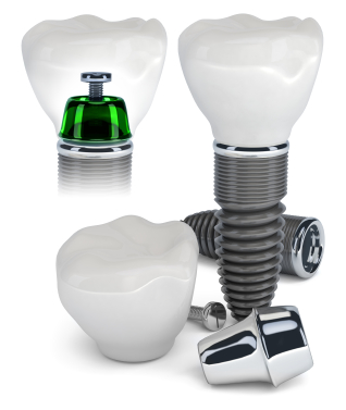 An example of the components of a dental implant