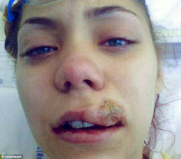 Credit; dailymail.co.uk - Woman with a burn from a high speed handpiece