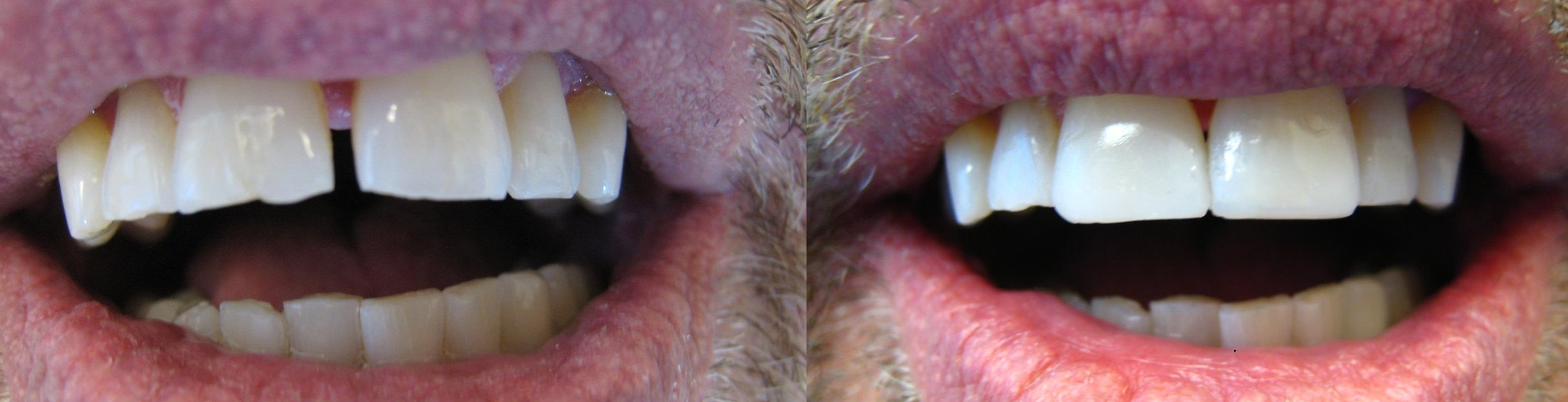 An example of closing a gap with cosmetic bonding by Dr. Jennifer Dean