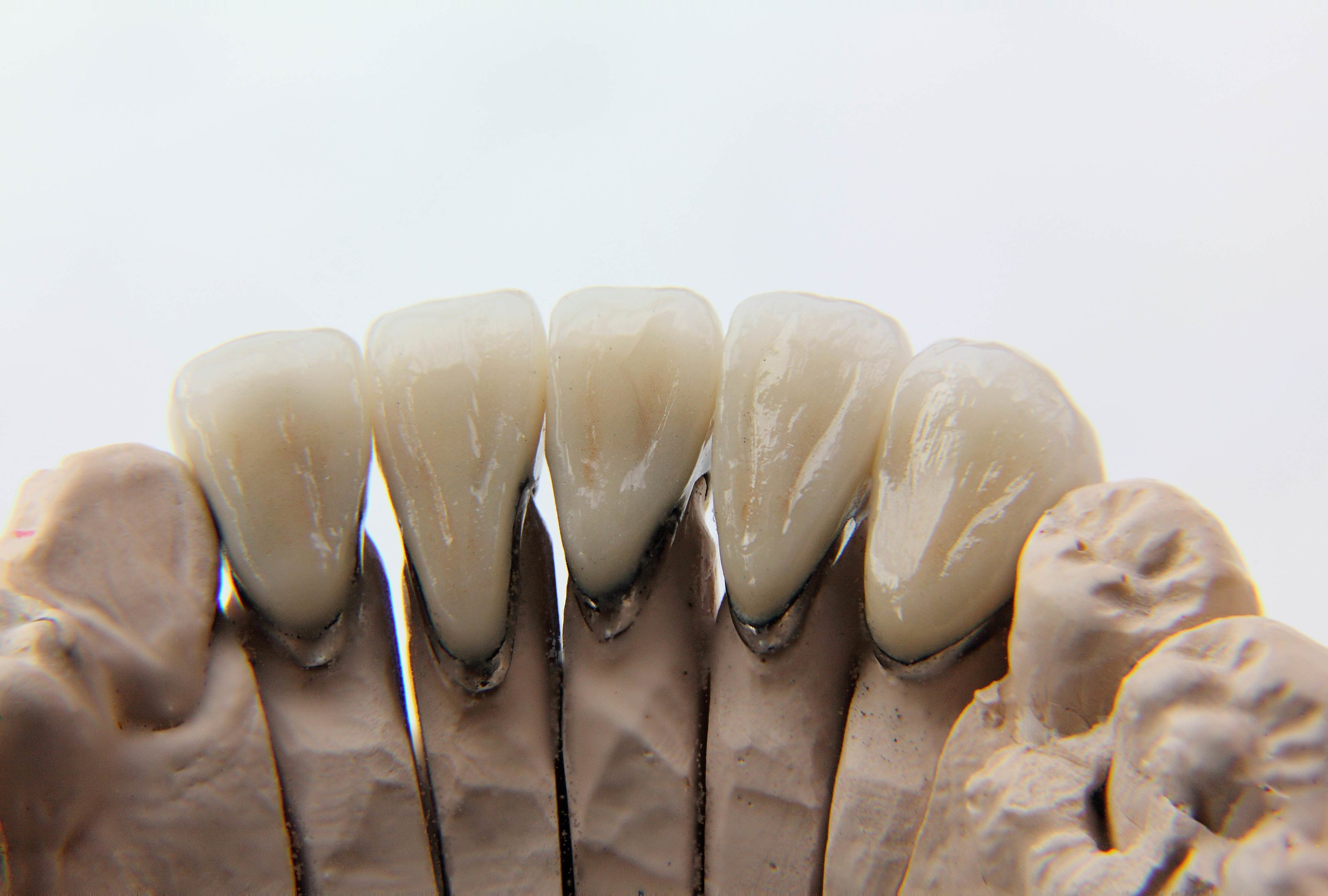 An example of metal showing on a PFM dental crown