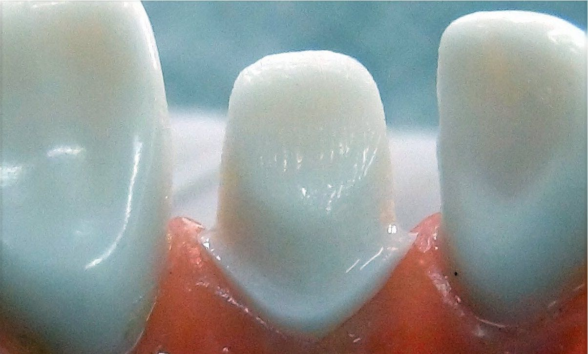 An example of a prepped tooth