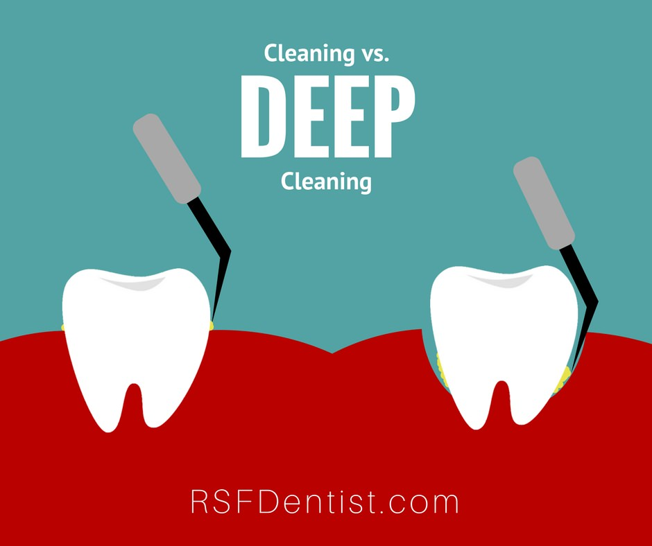 Regular Cleaning vs Deep Cleaning