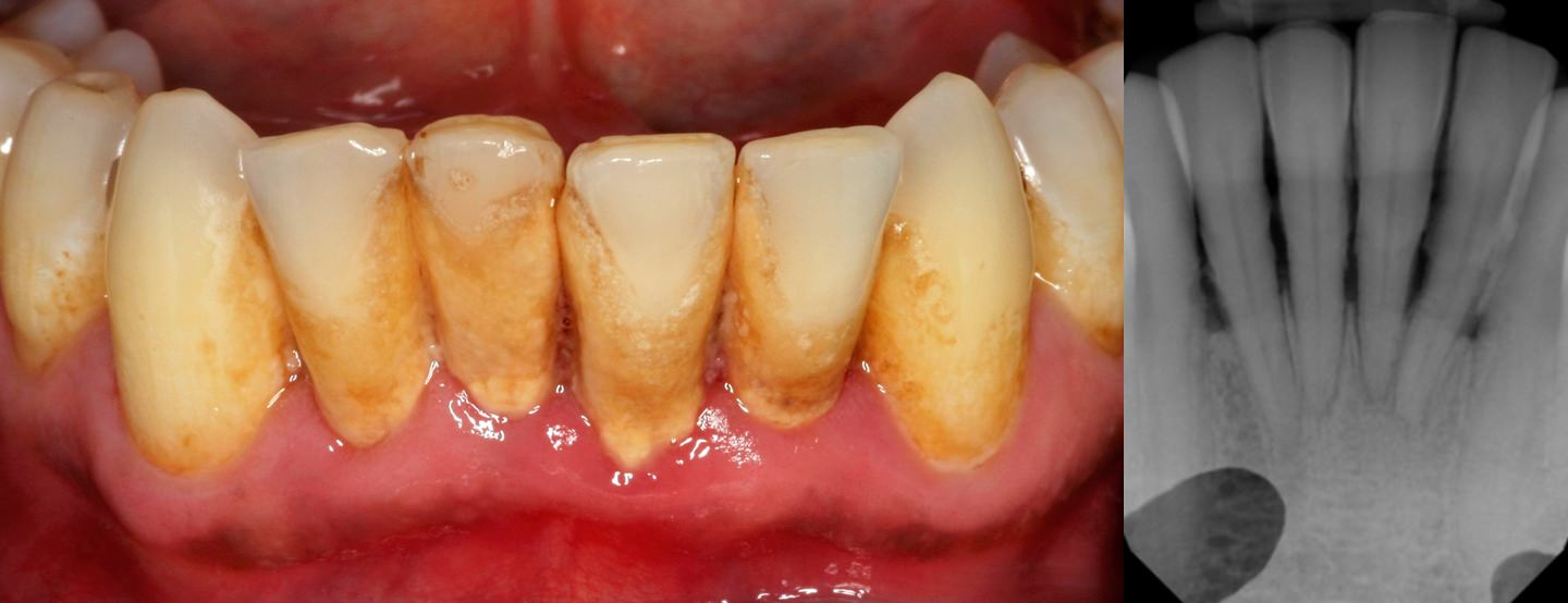Deep Cleaning and perio maintenance needed to avoid severe disease state