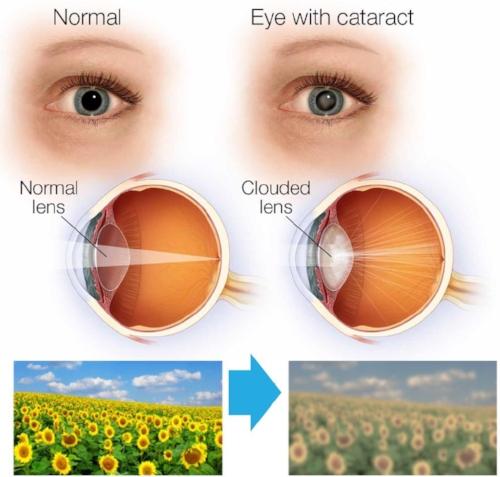 Cataractttt.jpg