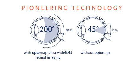 optomap-pioneering-technology.jpg