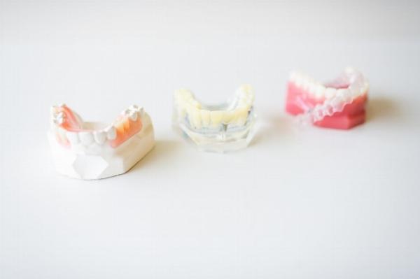 parkside dentistry implant