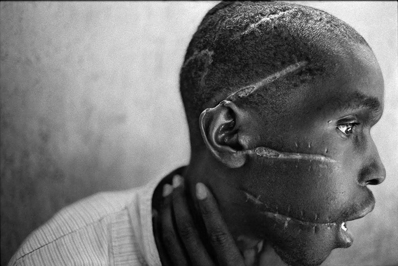 James Nachtwey, A Hutu man at a Red Cross hospital in Nyanza, Rwanda, 1994   Placement: CHEST & ABS | BACK & GLUTES |