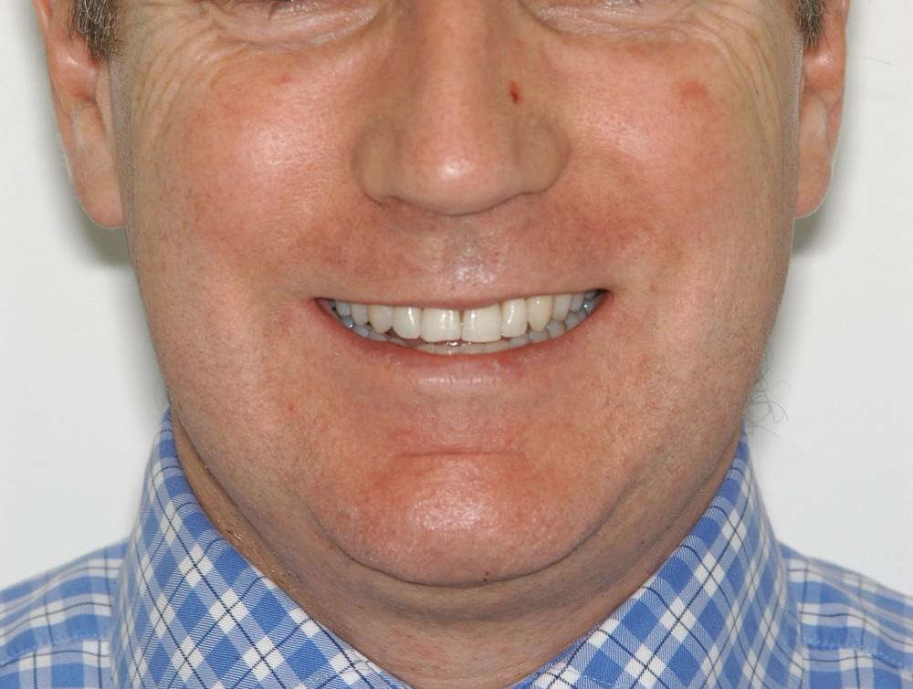 jo smile 2+.jpg