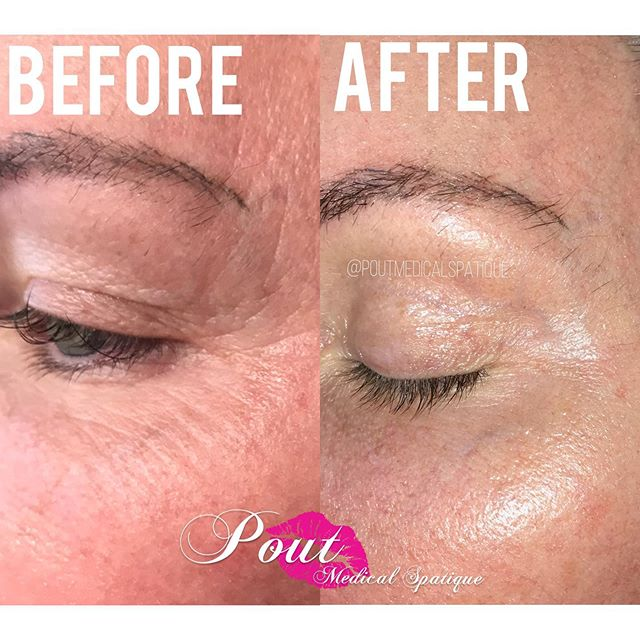 FIBROBLAST✨ 3 weeks post treatment!