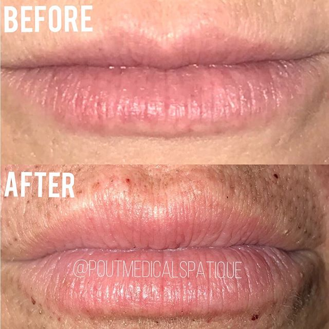 FIBROBLAST LIP FLIP💋 🚫NO FILLERS! This procedure is a great alternative to get the perfect pout with out the use of lip filler✨ #fibroblast